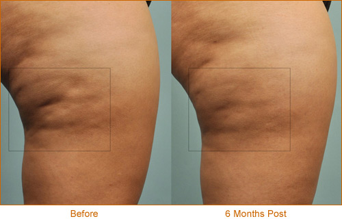 Cellulaze results 3, before and 1.5 years after