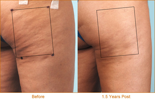 Cellulaze results 4, before and 1.5 years after
