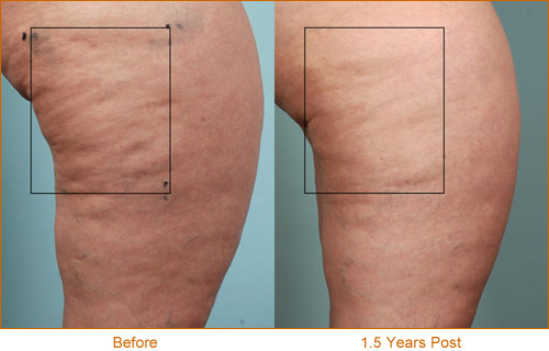 Cellulaze results 5, before and 1.5 years after
